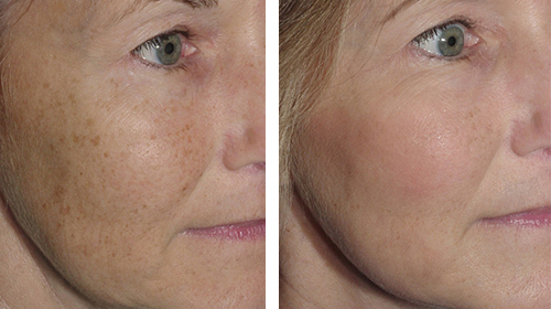 Photofacials and Rosacea treatment in Burnaby BC.