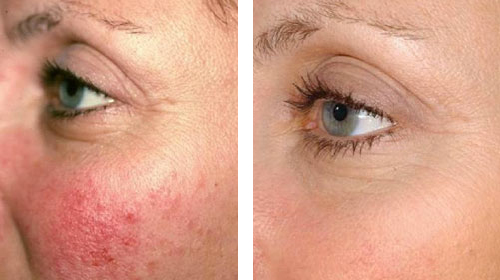 Rosacea treatment in Burnaby BC.