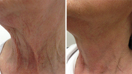 Skin Tightening, photofacials in Vancouver BC.